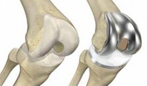 MJRC Clinic offers Knee Replacement surgery that will improve your life and allow you to get back to doing things you love. http://www.kneereplacement.co.in/
