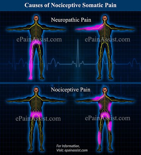 Causes of Nociceptive Somatic Pain