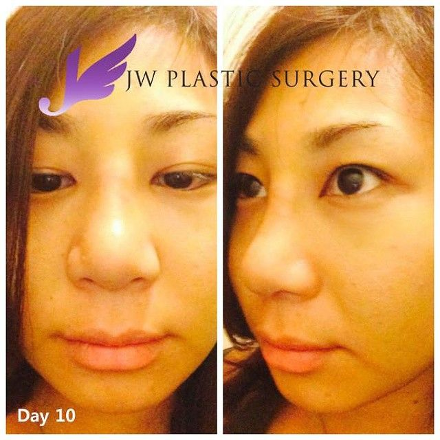 W Real Model Program - Hena Day 10,Hena said the bruises are totally gone.She is very happy about that.But the nose still looks swollen.In a few days, it will become slimmer. Normally, it takes 2 or 3 months to see the final shape. #CosmeticSurgery #JWbeauty #JWplasticsurgery #JWplasticsurgeryKorea #ManKoonSuh #Epi #AsianRhinoplasty #Implant #Nosejob #Rhinoplasty #DeviatedNose #NoseRevision #NoseCorrection #TipPlasty #SiliconeImplant