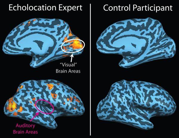 Human echolocation - Wikipedia, the free encyclopedia