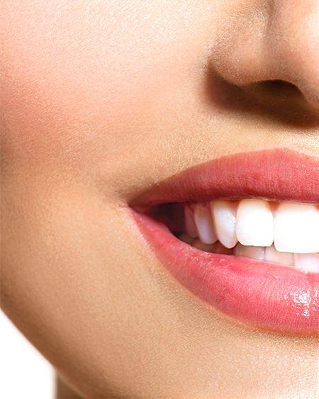 white light smile teeth whitener gymjunkies product. Black Bedroom Furniture Sets. Home Design Ideas