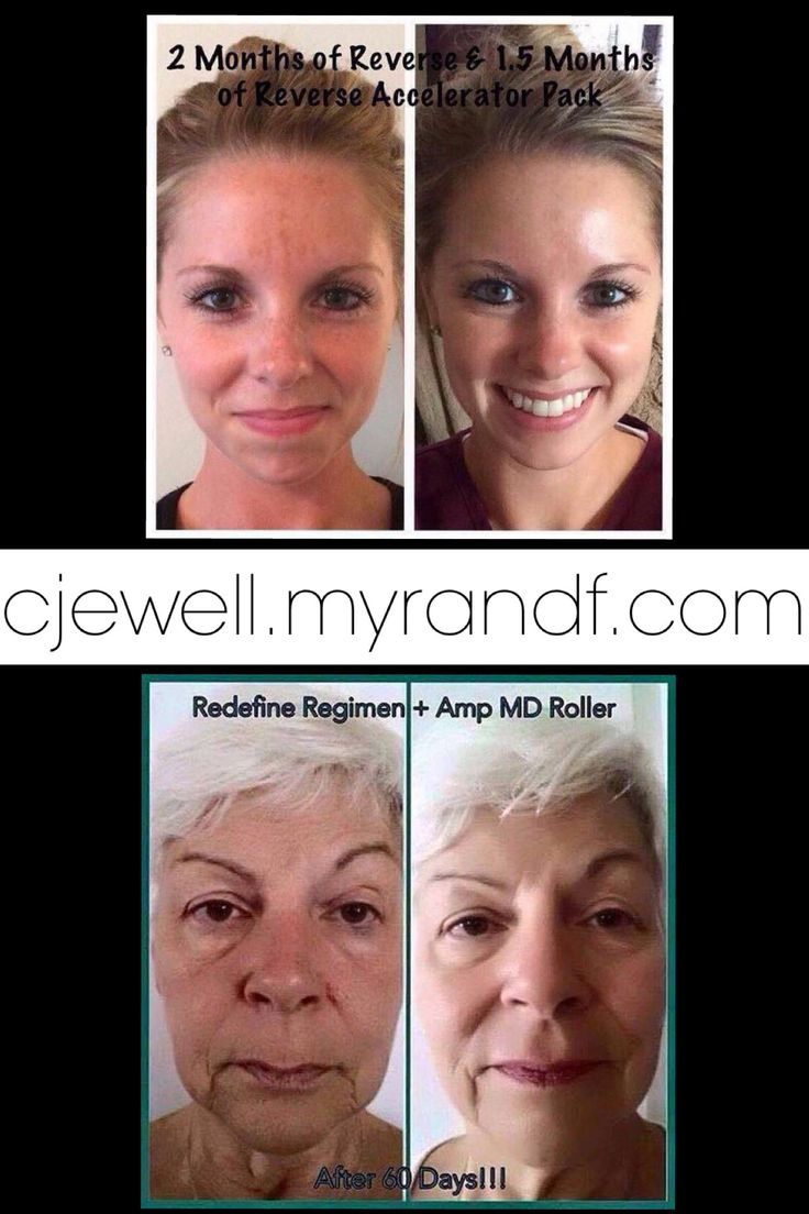 Aging is inevitable but HOW we age is optional!! Use my Solution Tool here...https://cjewell.myrandf.com/Pages/OurProducts/GetAdvice/SolutionsTool to find out what R+F products are right for your concerns...it's free and takes 3 minutes.