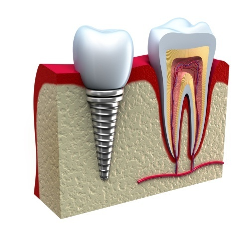 A tooth implant designed to replace a single tooth is composed of three parts: the titanium implant that fuses with the jawbone; the abutment, which fits over the portion of the implant that protrudes from the gum line; and the crown which fits onto the abutment for a natural appearance.    http://www.morganrogersdental.com/dental-services/dental-implants-services.html