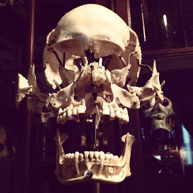 Exploded human skull By ryanmatthewcohn