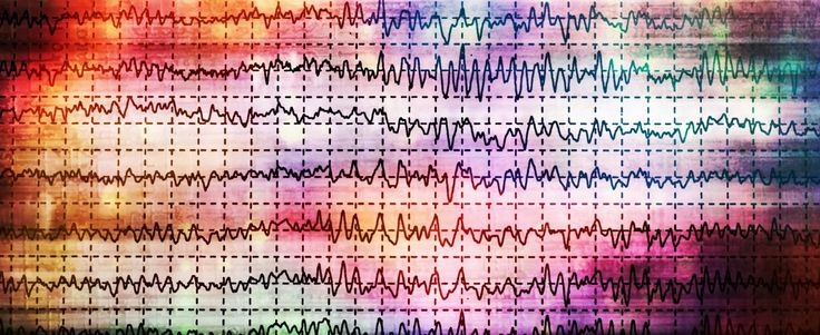 Three Cases of Spinal Muscular Atrophy Associated With Progressive Myoclonic Epilepsy