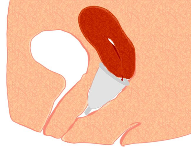 An illustration of how the menstrual cup fits internally.
