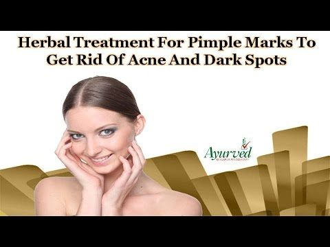 You can find herbal treatment for pimple marks at http://www.ayurvedresearch.com/herbal-acne-treatment.htm  Dear friend, in this video we are going to discuss about herbal treatment for pimple marks. Golden Glow capsules provide the best herbal treatment for pimple marks to get rid of acne and dark spots in a safe and healthy manner.  Facebook : https://www.facebook.com/ayurvedresearch Twitter : https://twitter.com/ayurvedresearch Google+ : https://plus.google.com/+ayurvedresearchfoundation…