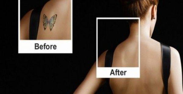 Πώς να αφαιρέσετε ένα τατουάζ με ασφάλεια για την υγεία σας; - http://biologikaorganikaproionta.com/health/198205/