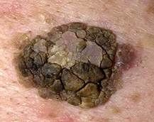 Raised Brown Spots On Skin See what can be done for age