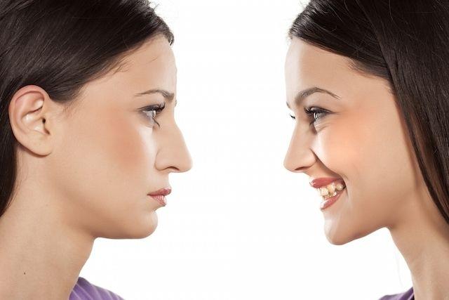 Como remodelar o nariz sem cirurgia plástica