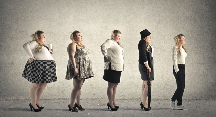 The Truth About Bariatric Surgery