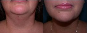 Neck Liposuction #drq #drquardt #plasticsurgery #neckliposuction