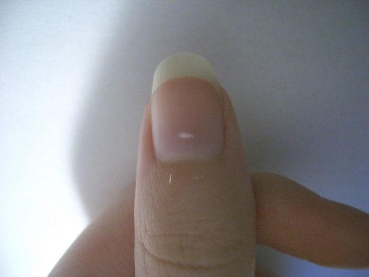 How to prevent and get rid of white marks on nails - http://heeyfashion.com/2015/07/how-to-prevent-and-get-rid-of-white-marks-on-nails/