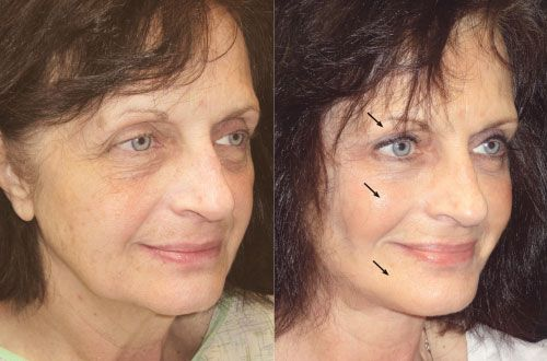Balch Springs Eyelid Surgery and non-surgical options.  Rejuvenate eyelids in Balch Springs, TX.  #eyelift #blepharoplasty #juvederm