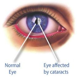 Christmas Tree Cataract Differential
