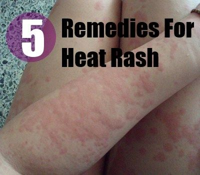 prickly rash how to avoid