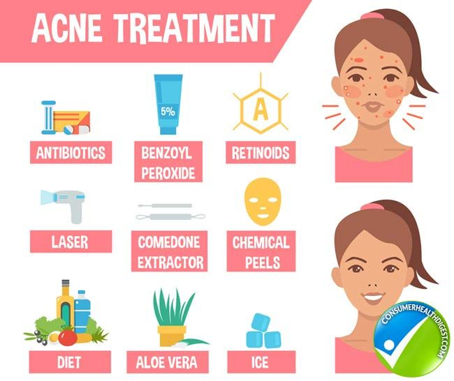 Acne: Types, Symptoms, Causes & Treatments