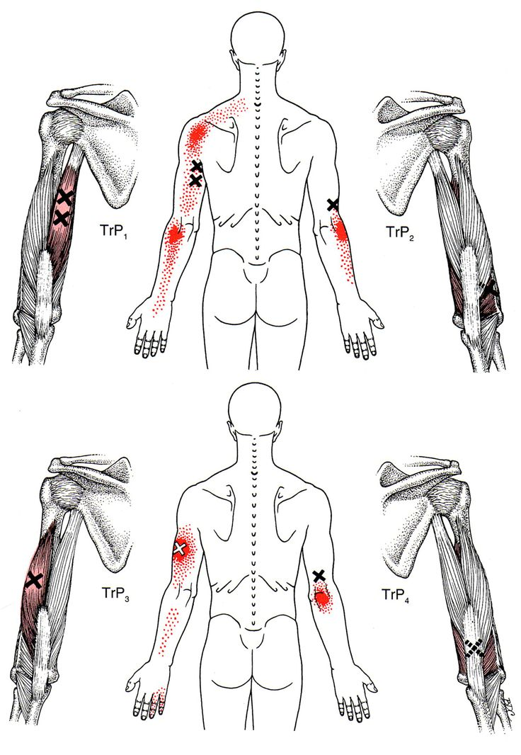 25 Best Ideas About Trigger Points Trigger