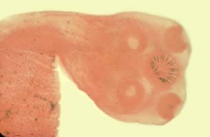 Iowa woman tries 'tapeworm diet', prompts doctor warning  (Photo: CDC) www.greennutrilabs.com