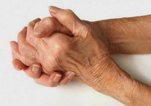 eniaftos: 7 Great Herbs To Help You Fight Arthritis & Joint Pain