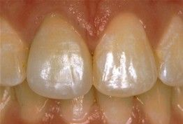 Porcelain Crowns -CEREC AFTER:  Replaced with an All Porcelain Crown (no metal). Tooth is now contoured to match the rest of the gumline. Restored tooth looks very natural and matches the shape and color of the patient's teeth.