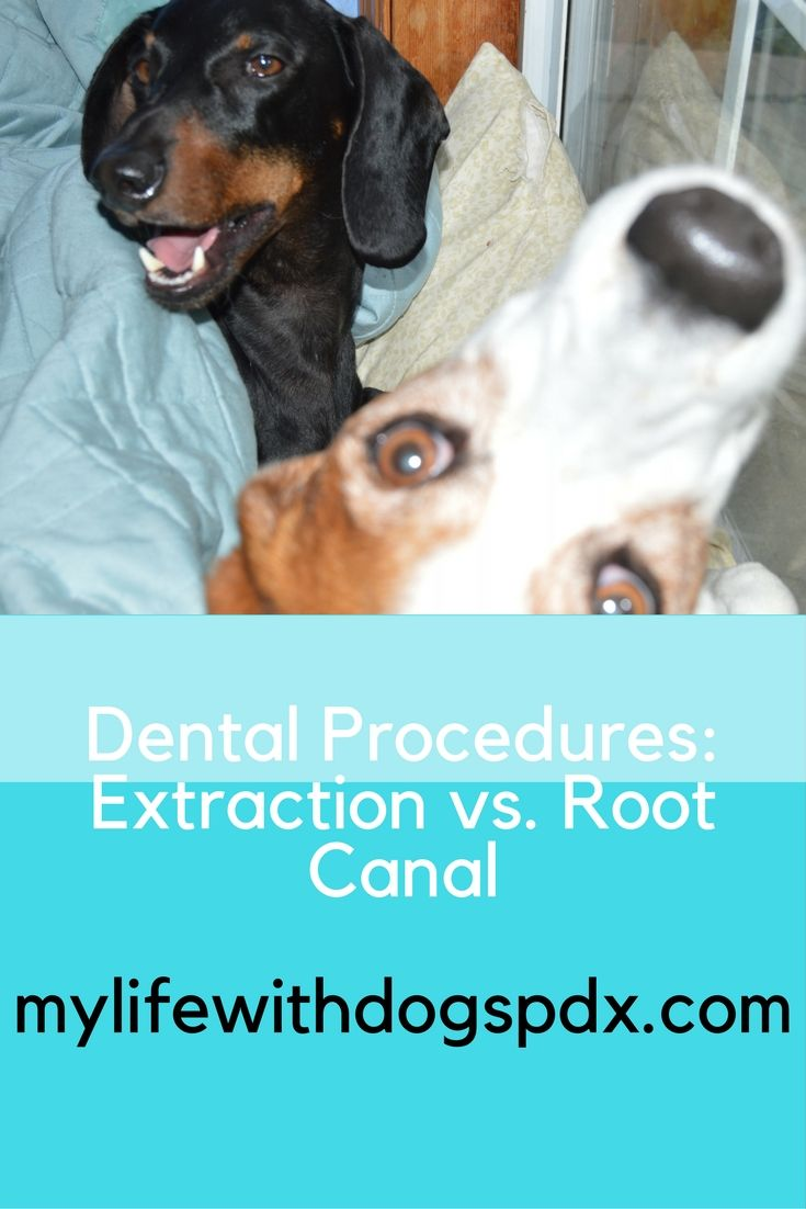 Learn more about dental procedures and the pro's and con's of an extraction vs. root canal.