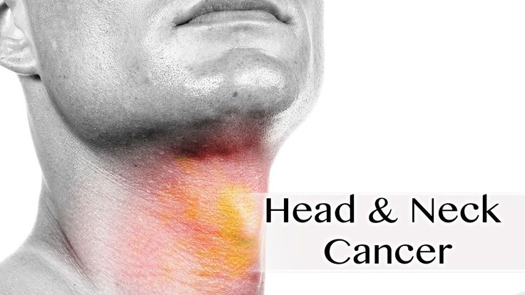 Head and neck cancer What is it Head and neck cancer is agroup of malignant tumors that appear in the head and neck region.Among the most frequent locations in which they can be located are the paranasal sinuses, nasopharynx, oropharynx (tonsil, soft palate, tongue base), hypopharynx, larynx, oral cavity (oral mucosa, gingiva, hard palate, tongue … #Tonsils