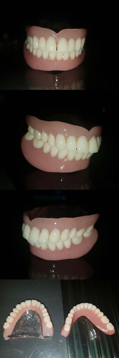 Other Oral Care: Sample,Model,Study Of Dentures,False Teeth,Dental. BUY IT NOW ONLY: $88.0