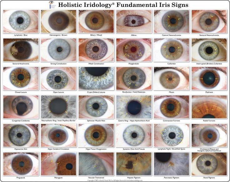 iridology chart   Iris Eye Colors Chart