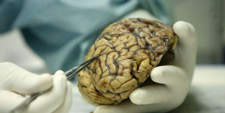 Suben las muertes por enfermedades respiratorias y alzhéimer
