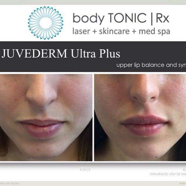 Perfect pout! #juvederm for upper lip balance and symmetry. #lipenhancement @spitbullseye @stacelynrose