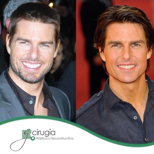 Porque la cirugía plástica, no es solo para mujeres, aquí tenemos de ejemplo al famoso Tom Cruise. Ambas fotos, tienen una diferencia de casi una década. ¿Qué te parece? :)