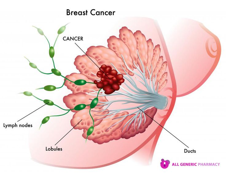 Don't get hopeless due to breast cancer, use Nolvadex