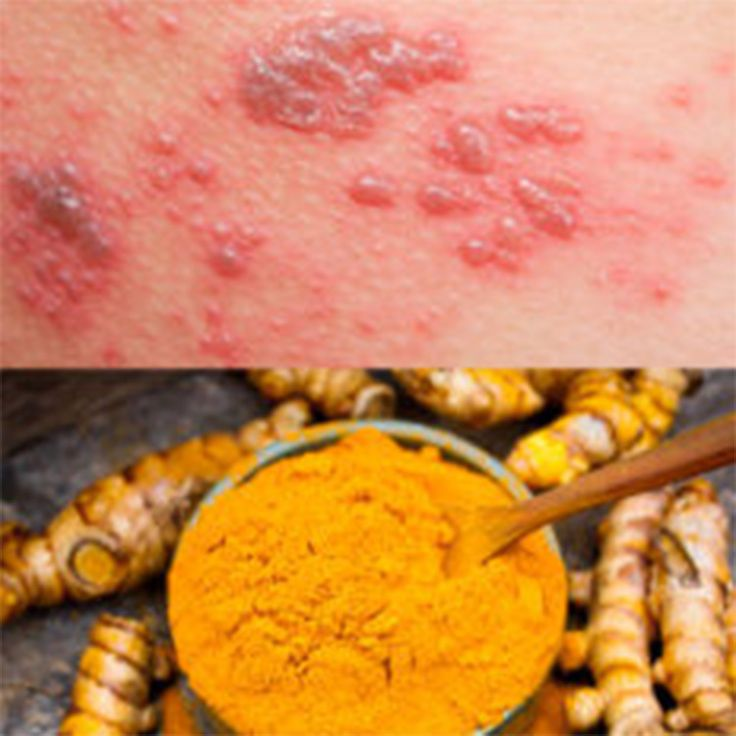 If you have a rash with red, purple or bluish lesions that itches and spreads, you may have lichen planus. This disease is triggered by the immune system in response to stress, allergens or a viral infection.  It may affect the skin, scalp and nails, as well as the mouth and the genitals. Discomfort can range …