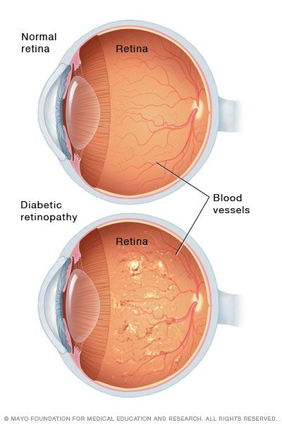 Diabetic retinopathy: Infographic comparing normal retina to one with retinopathy.
