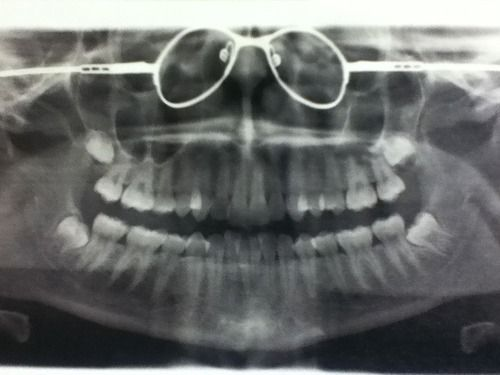 Please Take Your Glasses Off Before Getting A Dental X Ray