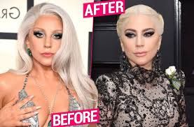 Image result for What has Lady Gaga done to her face? Plastic surgeon dishes dirt on shock transformation https://www.dailystar.co.uk/showbiz/678030/Lady-Gaga-plastic-surgery-new-face-lift-Botox-fillers-nose-job-before-after-pictures