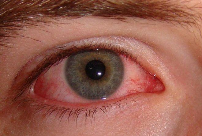 Народные средства для восстановления зрения