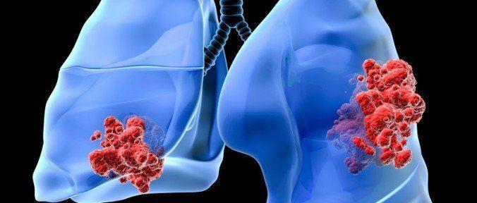 10 Sinais e Sintomas do Câncer de Pulmão Que Não Devem Ser Ignorados - http://comosefaz.eu/10-sinais-e-sintomas-do-cancer-de-pulmao-que-nao-devem-ser-ignorados/