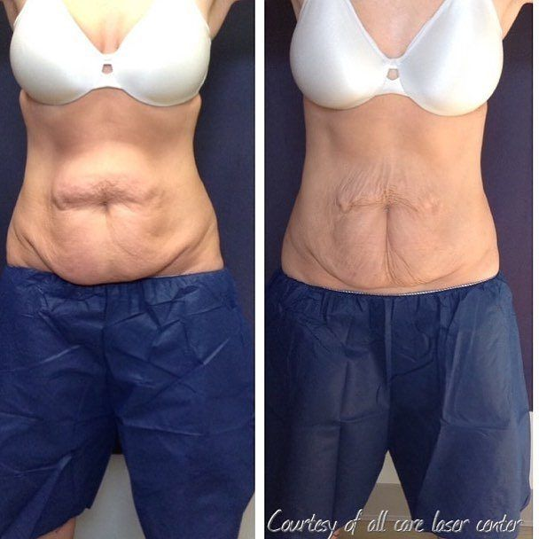 Coolsculpting is here at The Skin Health Institute! Freeze the fat off? Does it work? Yes yes it does. #Repost @all_care_laser  Dramatic results after two rounds of @coolsculpting in the abdominal area. client was made aware of skin laxity prior to treatment and wanted to focus on de-bulking before skin tightening. #coolsculpting #fatreduction #northandover #northshore #laserhairremoval #antiaging