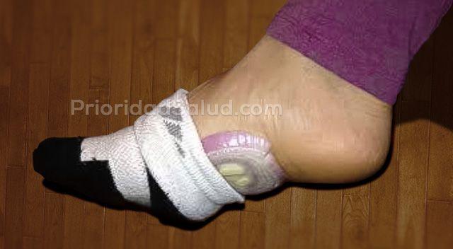 Esto ocurre si colocas cebolla morada en tus pies durante 5 noches
