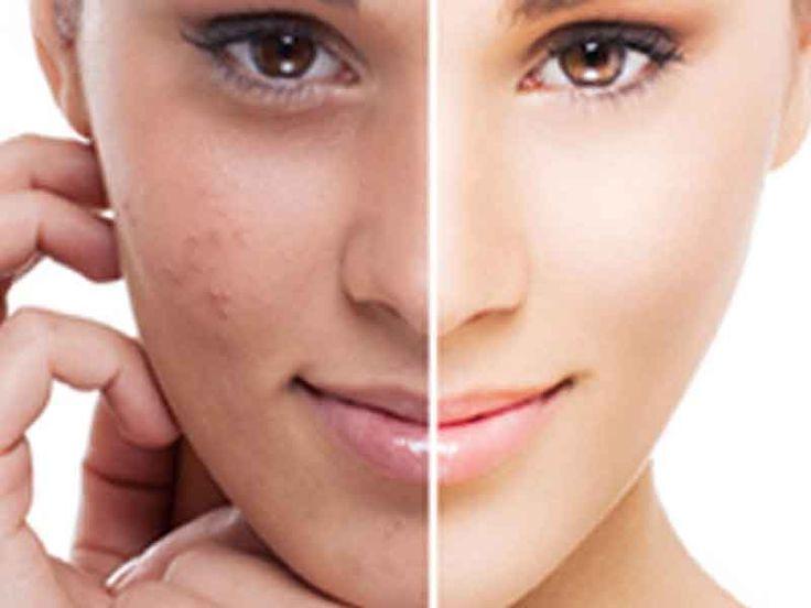 Natural Dark Spot Corrector For Black Skin