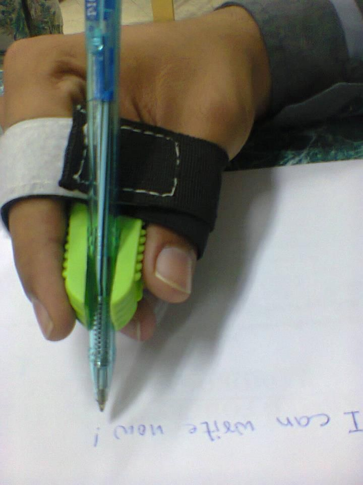 This pencil grip enables this individual to write. http://www.disability-ecafe.net/node/8126