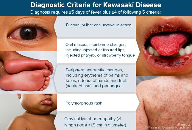 Diagnostic Criteria for Kawasaki Disease