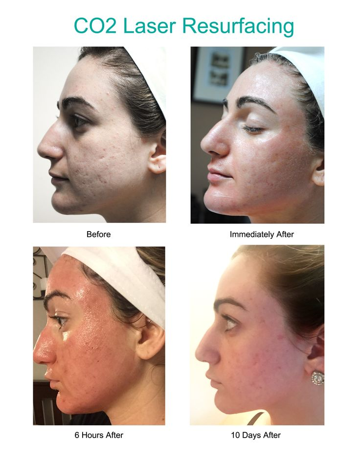 Results from CO2 Laser Resurfacing. See what to expect immediately after, 6 hours after, and 10 days after a CO2 treatment.