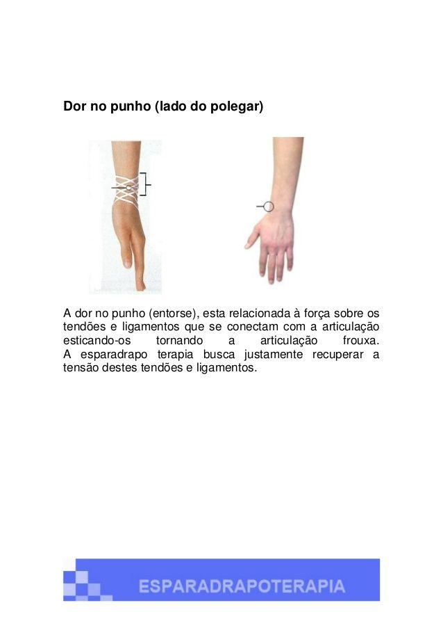 Tratamento do ombro congelado Ombro congelado, também conhecido como Capsulite Adesiva, é a perda da movimentação ativa e ...