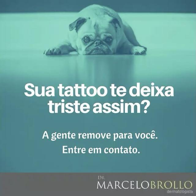 WEBSTA @ marcelovab - Se você tem uma tatuagem que não gosta mais, não precisa sofrer com ela. Você pode destatuar e ficar mais 😊!!Saiba mais sobre remoção de tatuagem:⠀👉🏻 🌎www.drmarcelobrollo.com.br⠀Dr. Marcelo Brollo    CRM RJ 52807699    CRM DF 17867⠀#remocaodetatuagem #laser #tattoo #tatuagem #dermatologia #drmarcelobrollo