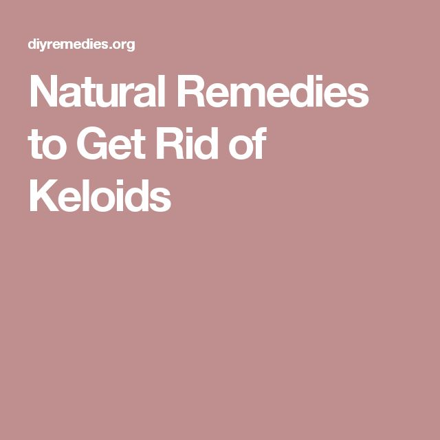 Natural Remedy For Keloids On Ear