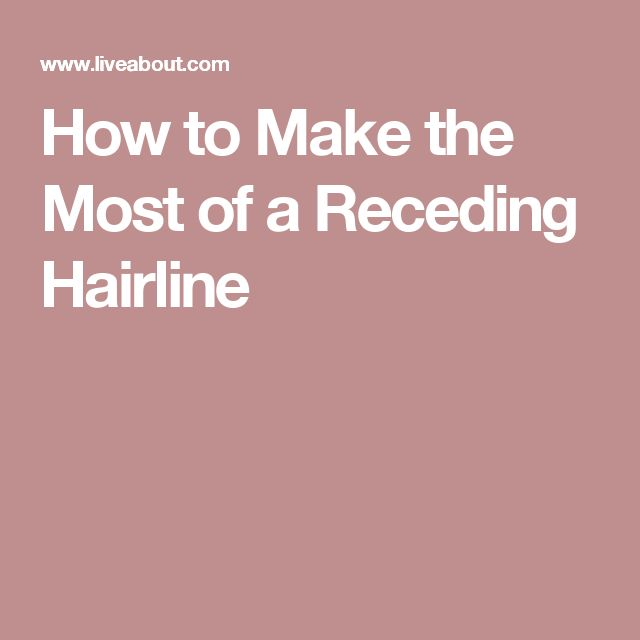 How to Make the Most of a Receding Hairline