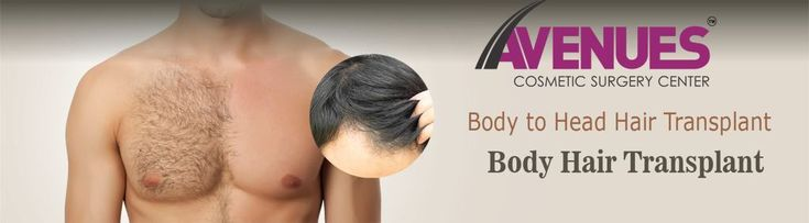 Body Hair Transplant is the similar procedure that is performed with the help of FUE to deal with the patients with weak donor areas. The surgeon needs more expertise since he has to choose the most suitable area to remove the hairs. If you have a weak donor site, there is nothing to worry because of the best Hair transplantation in Ahmedabad that is performed by the experts of the Avenues clinic.